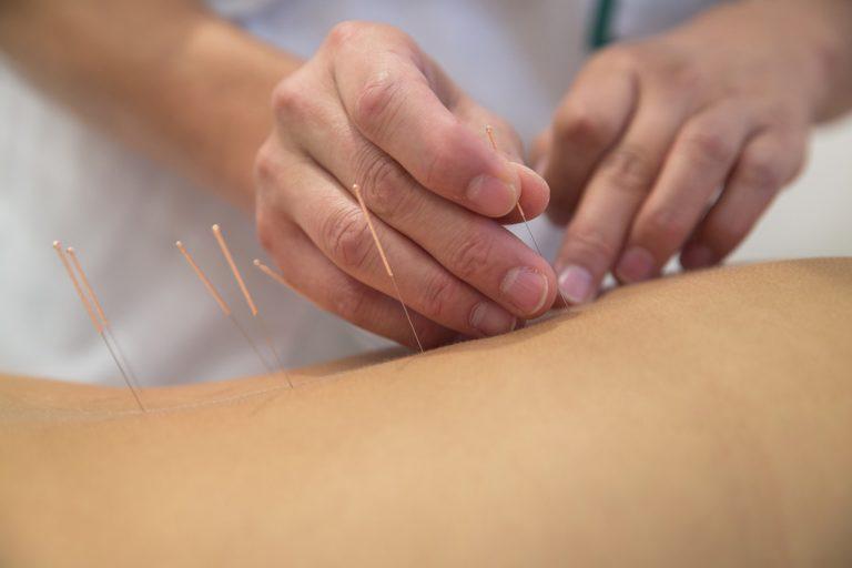 Akupunktur_web